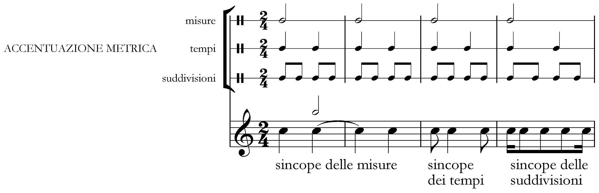 Vari_tipi_di_sincope